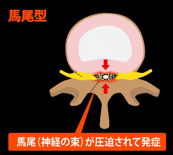馬尾型の脊柱管狭窄症