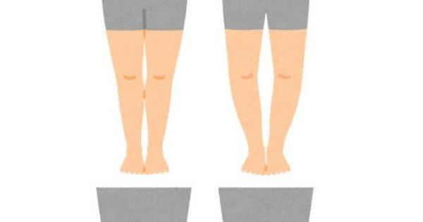 明石市の寿整骨院が「明石でO脚でお悩みの方へ」のお悩みを改善します!
