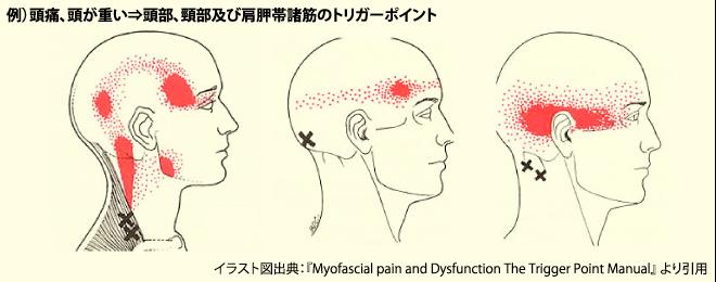 頸部及び肩胛帯諸筋のトリガーポイント